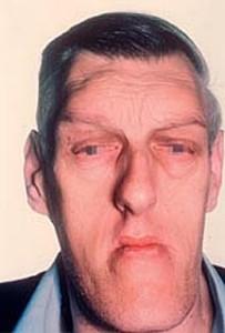 akromegali